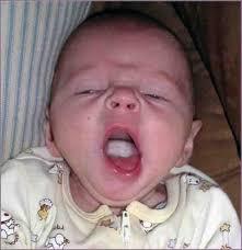 آفت دهان نوزاد