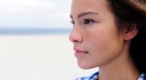 مشکلات پوستی در دوران بارداری و توصیه هایی برای پیشگیری ازآن