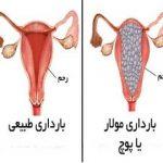 پیشگیری و درمان حاملگی های پوچ