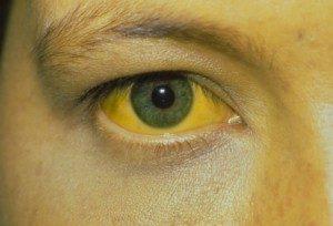 بیماری هپاتیت در کودکان و عوامل تاثیر گذار بر آن