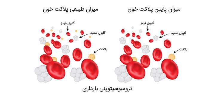 پلاکت خون در دوران بارداری